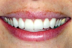 cosmetic dentist connecticut