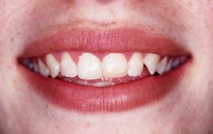 ct cosmetic dentist
